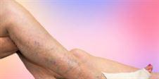 żylaki jak leczyć