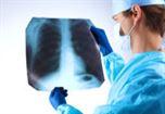lekarz ogląda płuca prześwietlenie