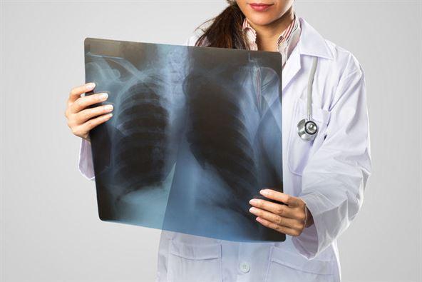 prześwietlenie płuc