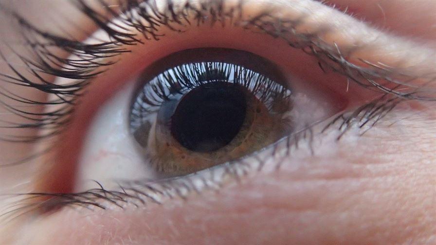 Zapalenie spojówek – przyczyny i sposoby leczenia