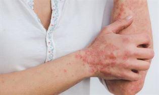 Łuszczyca – przyczyny, objawy, leczenie